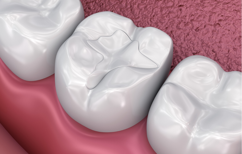 Tooth Coloured Fillings - Ashfield Dental Centre