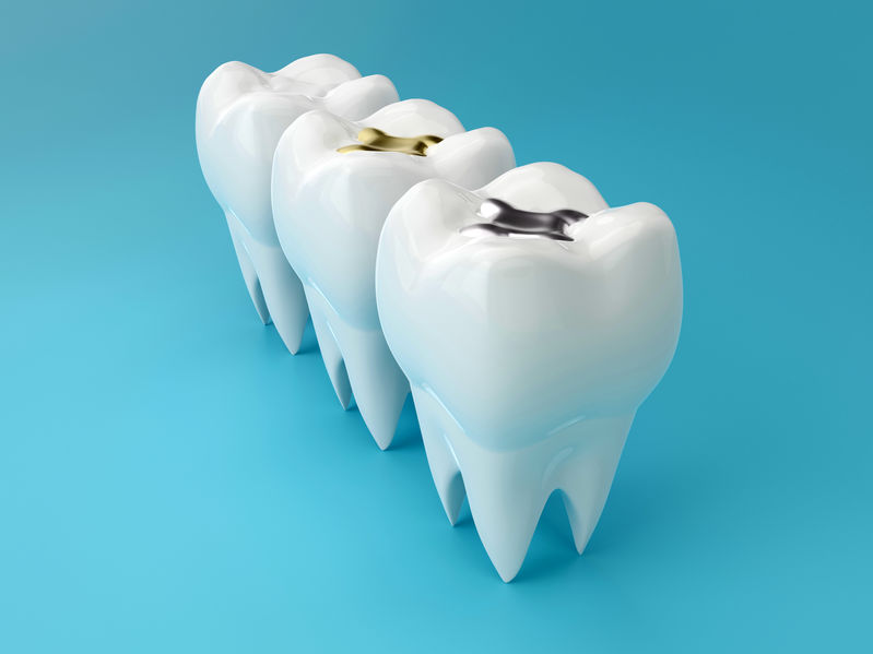 know about tooth fillings
