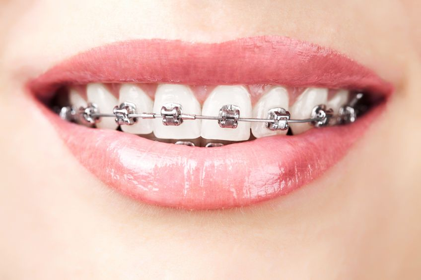 Braces and Oral health